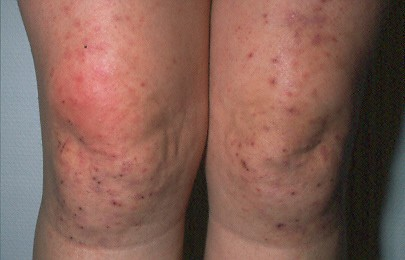 Celiac and Your Skin: Dermatitis Herpetiformis