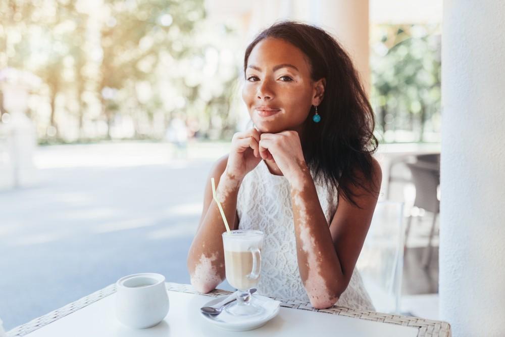Can A Gluten Free Diet Help With Vitiligo Gluten Free Living